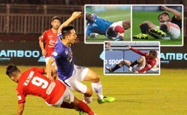 Hùng Dũng và những cầu thủ từng bị gãy gập ống đồng của bóng đá Thế giới